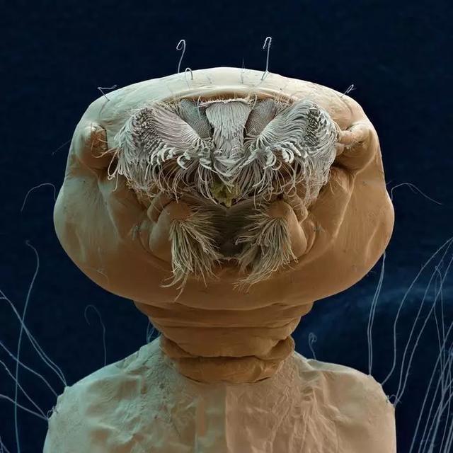 显微镜下的生物特写,不得不承认我们天天都在接触